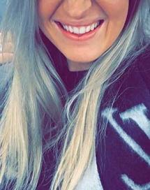 Hollywood Smile Tanden Bleken